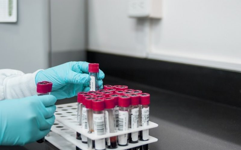 Contro le metastasi dei melanomi un gene legato all'Alzheimer