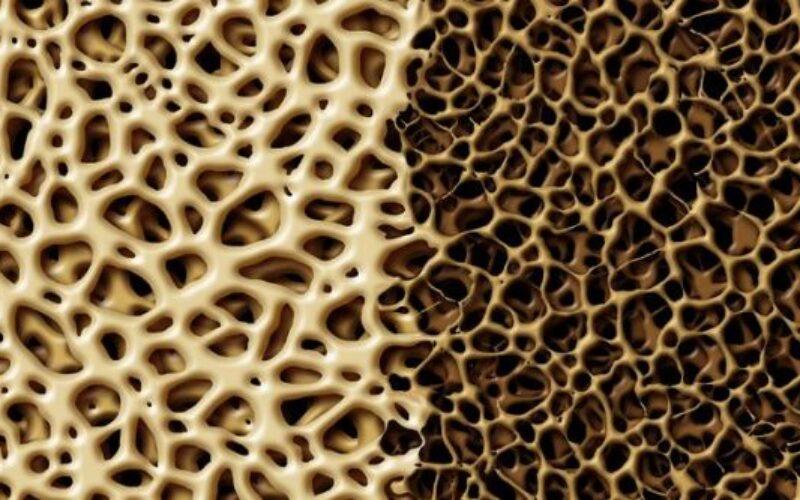 Osteoporosi, 4,5 milioni di casi in Italia