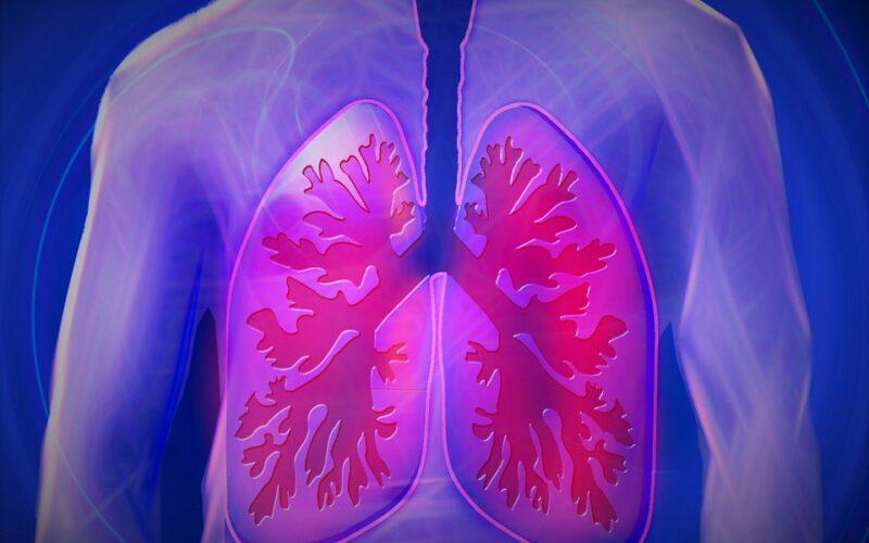 Sicilia, ogni anno 3 mila casi di tumore ai polmoni